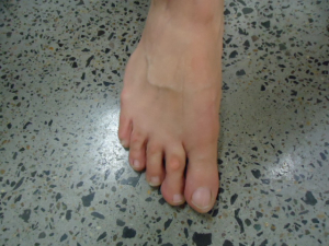 A bunion before treatment