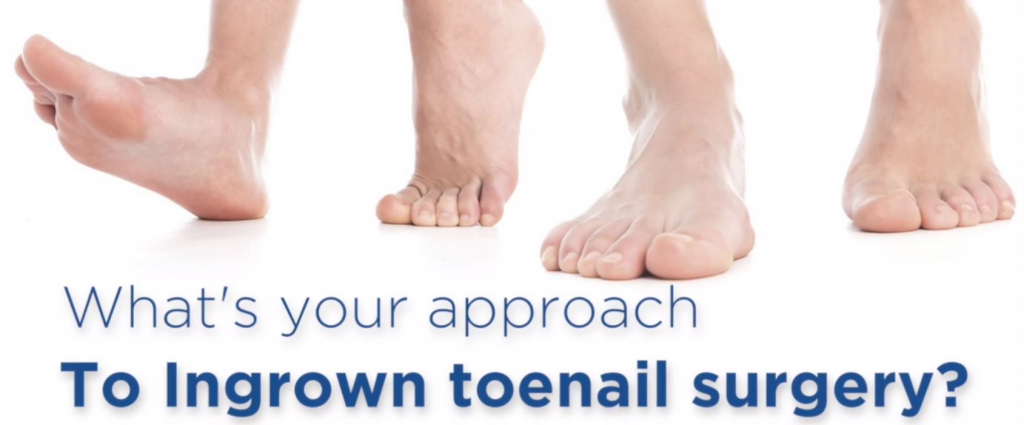 Click this image to view a short video about Ingrown Toenail surgery.