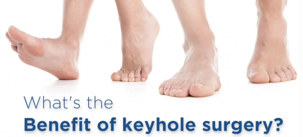 Short video on the benefits of keyhole surgery
